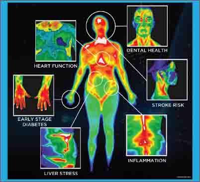 foto inframerah untuk diagnosis kesehatan